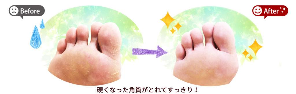 足裏の角質ケア